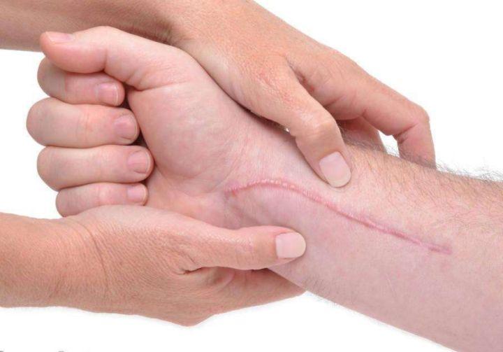 怎样能防止伤口留疤 伤口留疤主要和什么有关