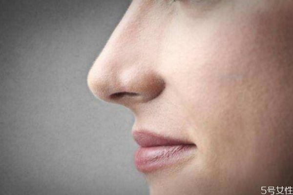 如何收缩鼻翼 收缩鼻翼的办法