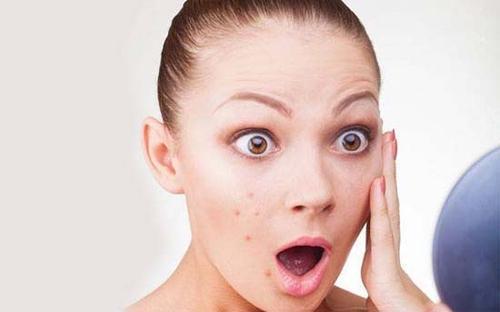 排卵期为什么会长痘痘呢 排卵期要怎么调理呢