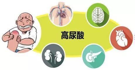 尿酸高不能吃什么 尿酸高有哪些症状