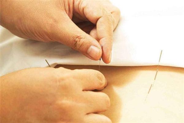 针灸减肥一个疗程多少钱 针灸减肥一个疗程是几天