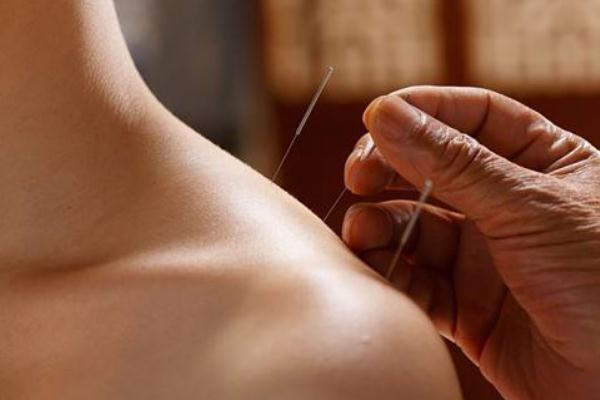 针灸减肥适合多大年龄 针灸减肥和埋线减肥的区别
