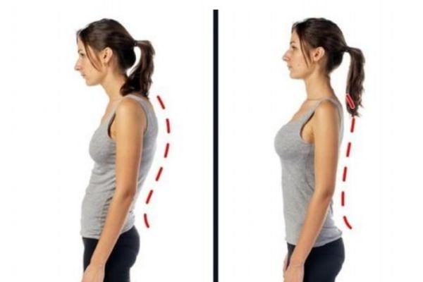 圆肩驼背形成的原因有什么 为什么会圆肩驼背