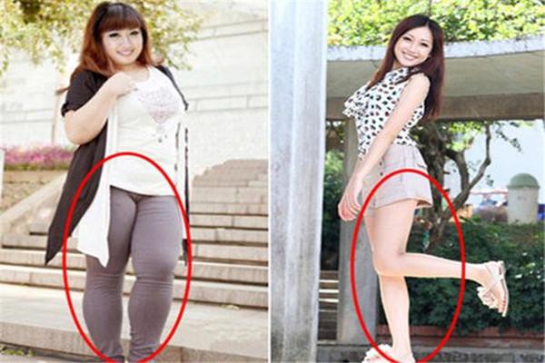 哪些坏习惯会导致大象腿 导致大象腿的原因