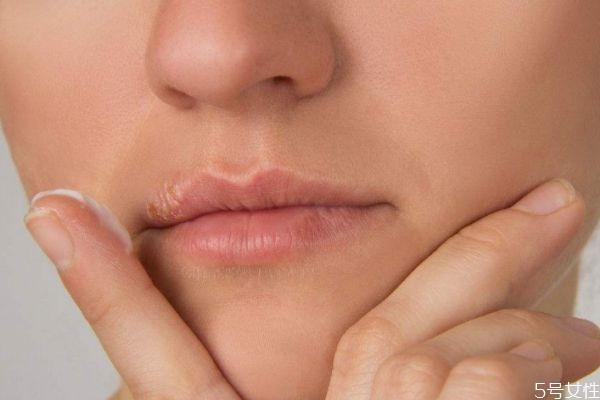 女性造成唇毛的原因是什么 为什么女性会长唇毛