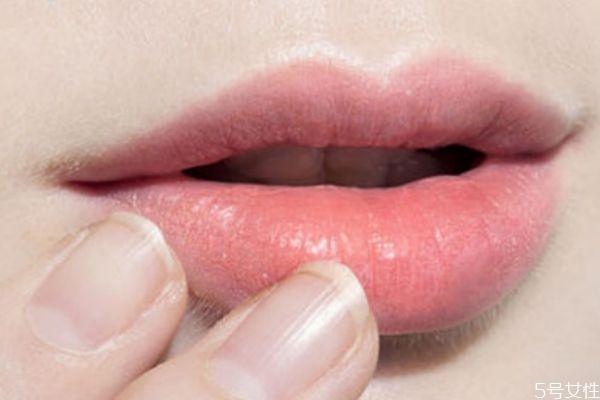 嘴唇颜色太暗是怎么回事 嘴唇颜色暗怎么调理
