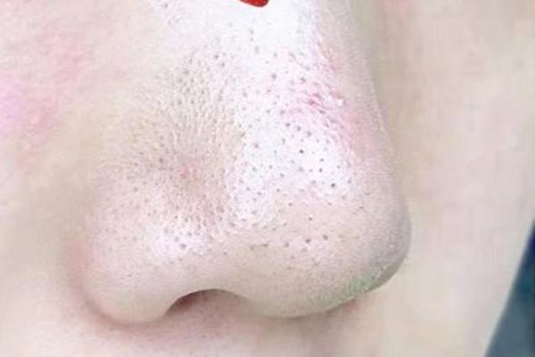 草莓鼻和酒糟鼻的区别 草莓鼻和酒糟鼻有什么不同