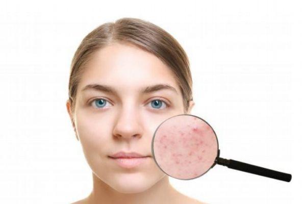 脸部过敏怎么办 解决脸部过敏的方法