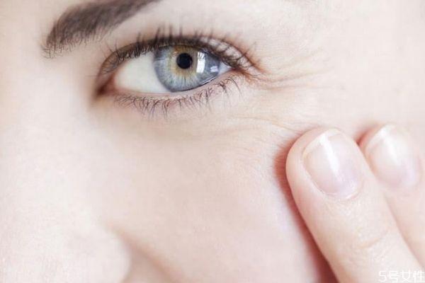 眼部的干纹怎么去除 去除眼部干纹的方法