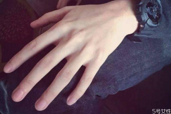 手指关节为什么会有皱纹 手指关节皱纹多怎么办