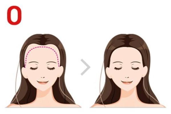 自体毛发种植的原理 自体毛发种植的特点