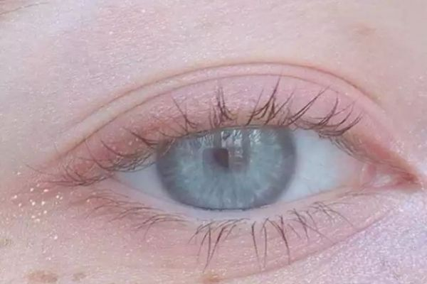 肿眼皮是怎么回事 如何避免眼皮浮肿