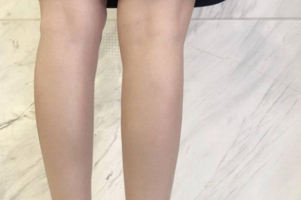 肌肉腿打瘦腿针可以瘦吗 肌肉腿打瘦腿针有用吗