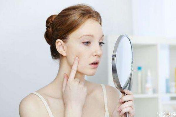 为什么化妆会长痘 化妆长痘的原因