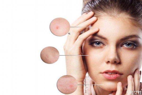 三十岁女人脸上长痘的原因 35岁脸上长痘痘的原因