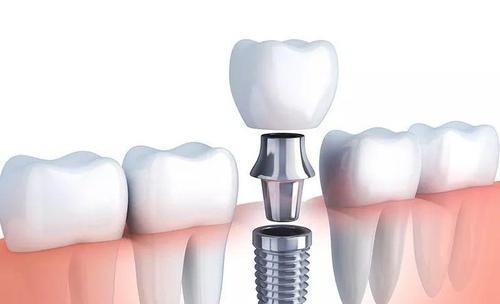 种植牙齿多少钱一颗 种植牙齿的价格受什么影响