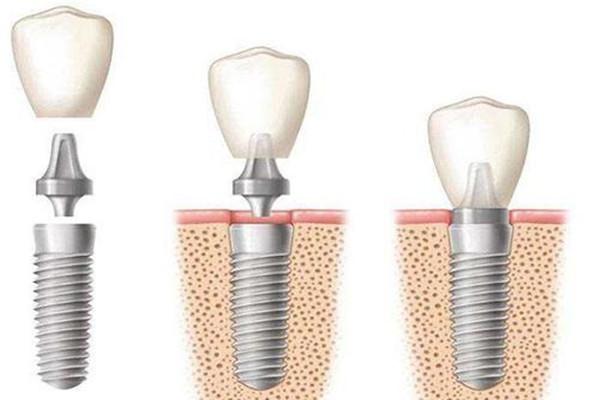 种植牙齿能用多少年 种植牙齿能用多久
