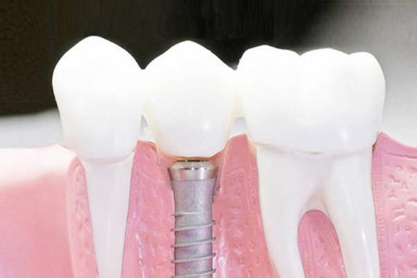 种植牙齿要注意什么 种植牙齿不能吃什么