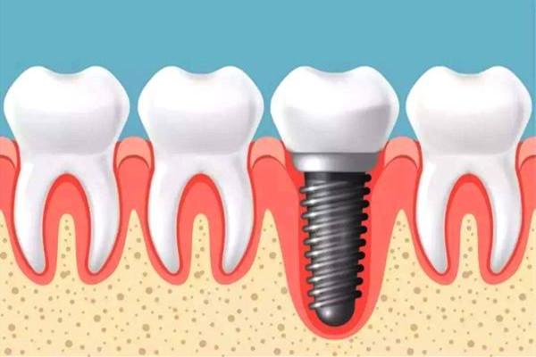 种植牙齿二期几天能拆线 种植牙齿多久能好