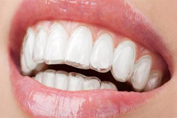 隐形牙箍的原理 隐形牙套的优点