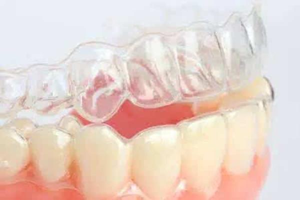 隐形牙套怎么戴 隐形牙套怎么清洁