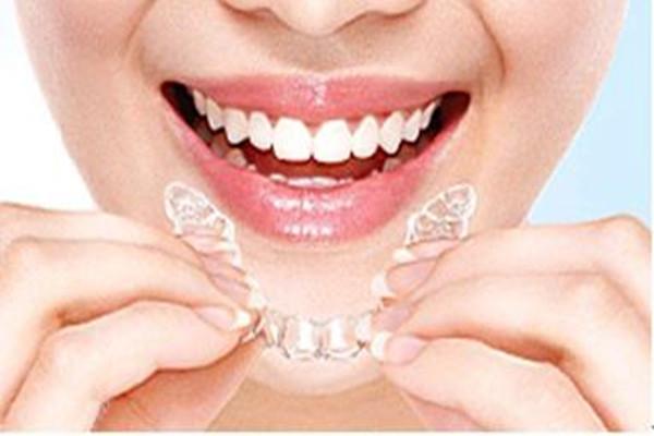 牙洞补牙要戴牙套吗 什么样的牙洞补牙不用戴牙套