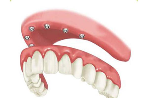 什么情况下适合种植牙齿 种植牙齿分为几个阶段