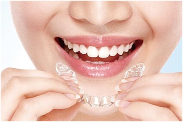 补牙要戴牙套吗 补牙要戴牙套的原因