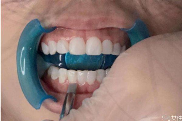 冰瓷美牙有什么危害 冰瓷美牙的副作用