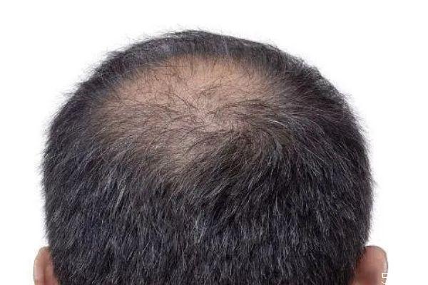 男生脱发的原因是什么 什么会导致脱发男生