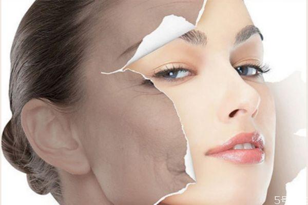 光子嫩肤后一定要医用面膜吗 光子嫩肤后怎么补水