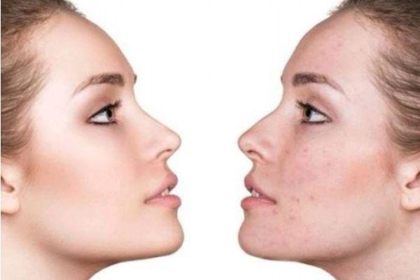 刷酸后皮肤脱皮是正常的吗 刷酸的正确护肤步骤