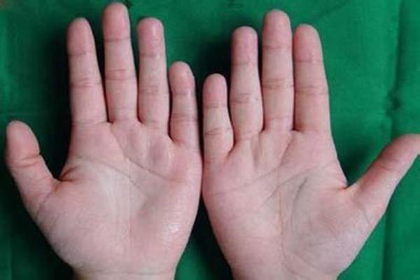 手汗症能自愈吗 手汗症太严重怎么办