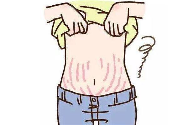 激光去妊娠纹恢复图图片