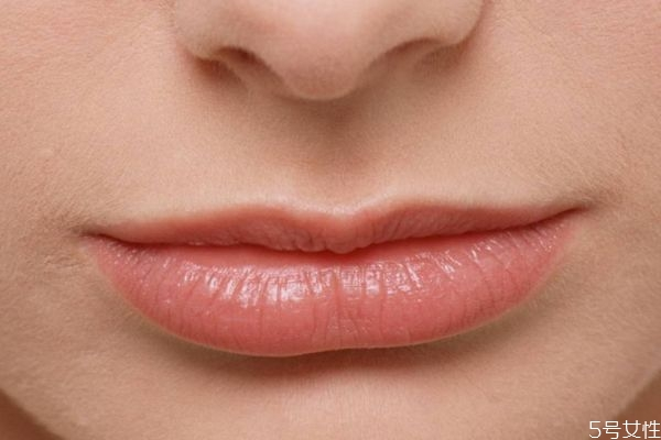 嘴角皮肤发黑是什么原因 怎样快速去除嘴角黑印