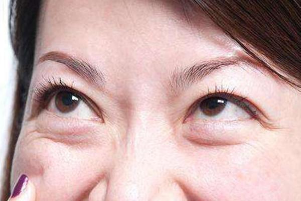 眼袋出现的原因 韩式去眼袋有效果吗