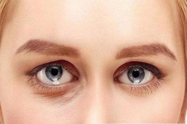 韩式去眼袋适合什么人 韩式去眼袋的手术怎么做