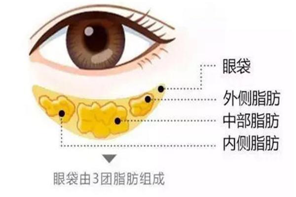 韩式去眼袋有痛感吗 韩式去眼袋会打麻药吗