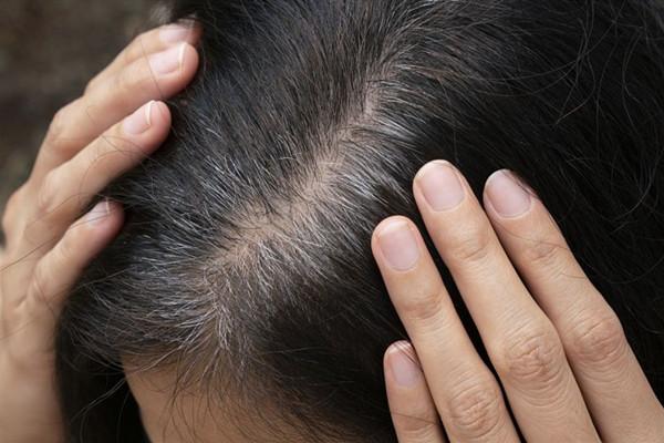什么是毛发移植 毛发移植安全吗
