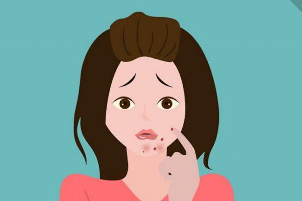 女性下巴长痘的原因有什么 为什么女性下巴会长痘