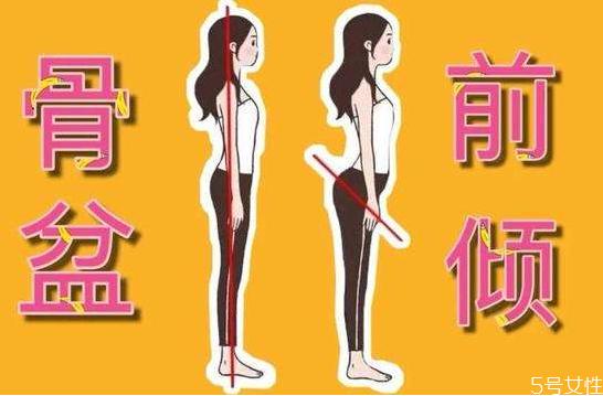 骨盆前倾是什么样子 怎么判断自己骨盆前倾