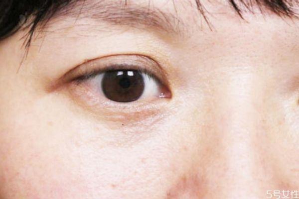 维生素e加凡士林可以去眼纹吗 维生素e加凡士林要洗吗