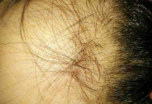 经常掉头发的人身体是缺什么营养