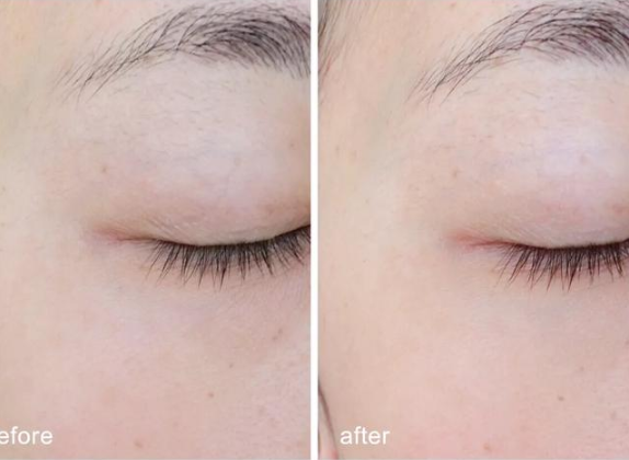 护肤与不护肤的区别图 护肤与不护肤的对比差距大吗