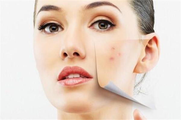 过度护肤的表现 过度护肤后怎么修复