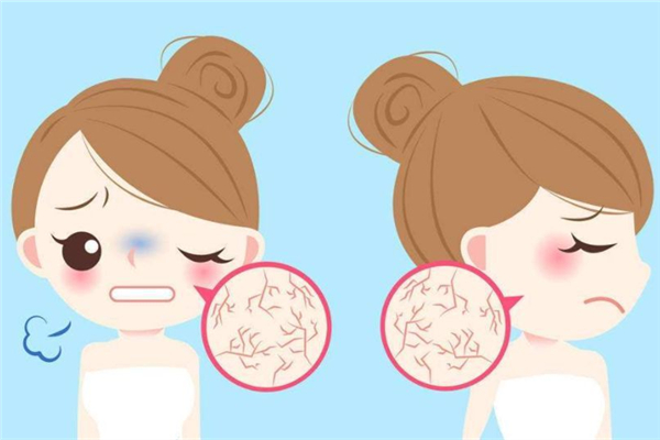 皮肤干燥的原因是什么 皮肤干燥会引起什么皮肤问题