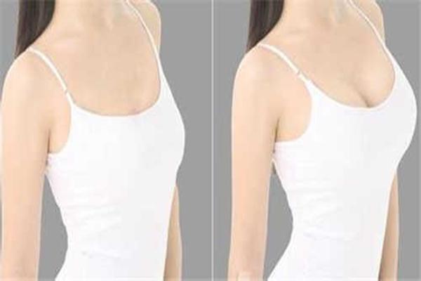丰胸手术风险大吗 丰胸手术对身体有什么影响