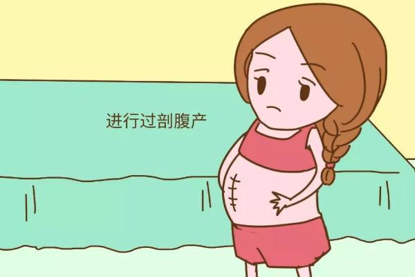 剖腹产的伤疤可以去掉吗 剖腹产的刀疤一般多久会彻底恢复