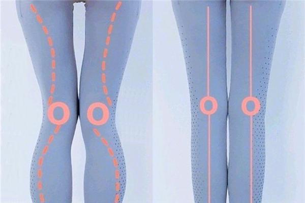 腿型不直可以矫正吗 腿型不直怎么矫正