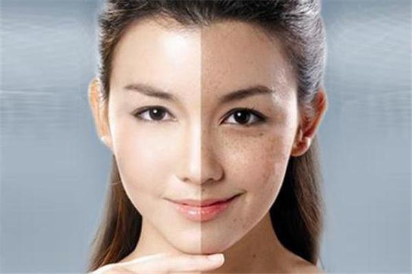 脸上的肌肤真的需要抗糖化吗 抗糖对肌肤到底有没有用